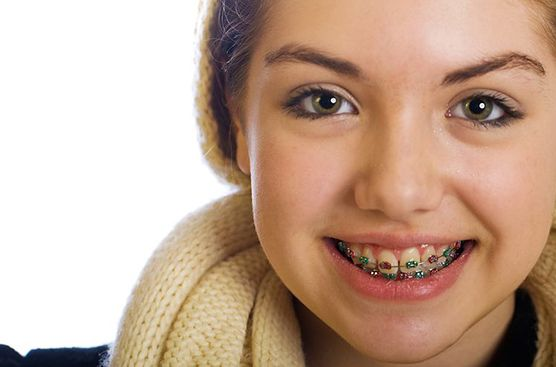 The Best Braces for Your Kid