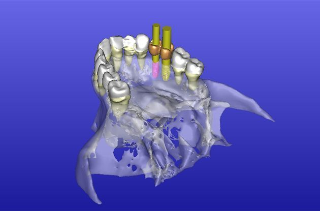 Nassau Dentist Uses New Technology for Tooth Implants