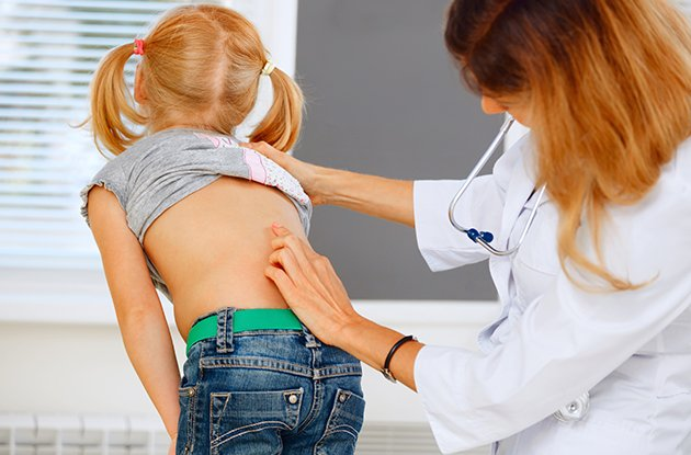 Girl with Scoliosis