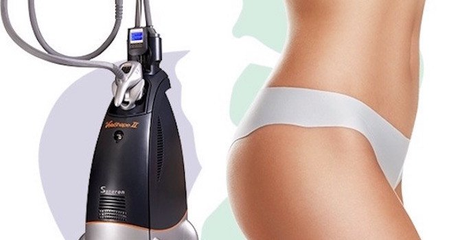 Body-Toning VelaShape Treatments at Anta Skin & Laser Spa in NYC