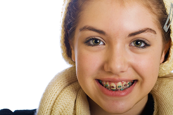 6e8b1a456 With braces being a fairly common need in teens and tweens